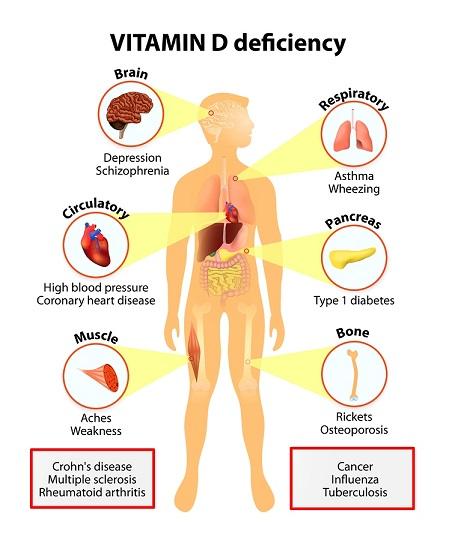 Deficiency.jpg